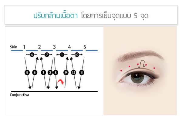 วิธีทำตาสองชั้น ปรับกล้ามเนื้อตา