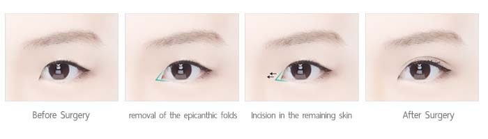 ศัลยกรรมเปิดหัวตา anterior incision