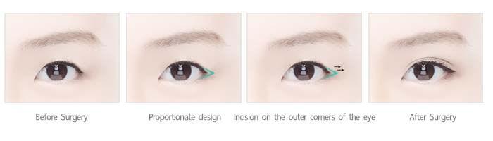 ศัลยกรรมเปิดหางตา posterior