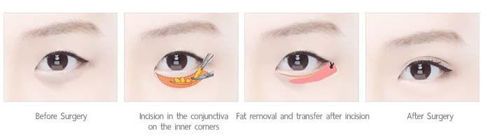 เกลี่ยไขมันใต้ตาเรียบ under eye fat removal