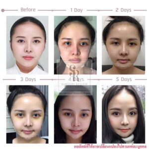 รีวิวศัลยกรรมคนไทย แก้ไขโครงหน้าหน้าเบี้ยว ต้องทำไงมาดูกัน (ที่เกาหลี)