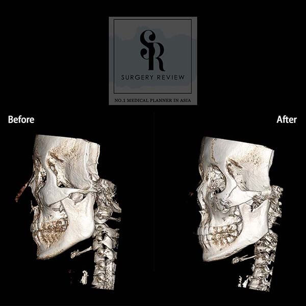 ct scan เปรียบเทียบหน้าด้านข้าง