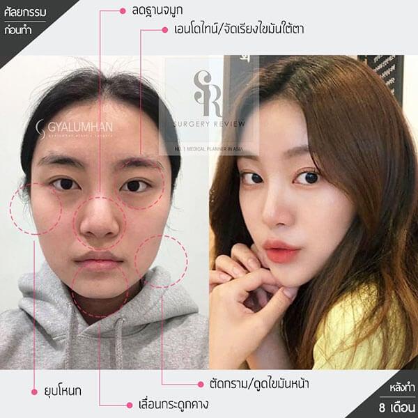 ศัลยกรรมตัดกราม โดย Dr kim nam ho Gyalumhan