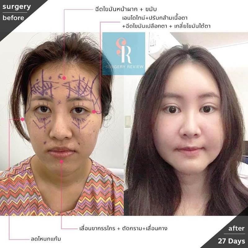 รีวิวคนไทยทำตาสองชั้น