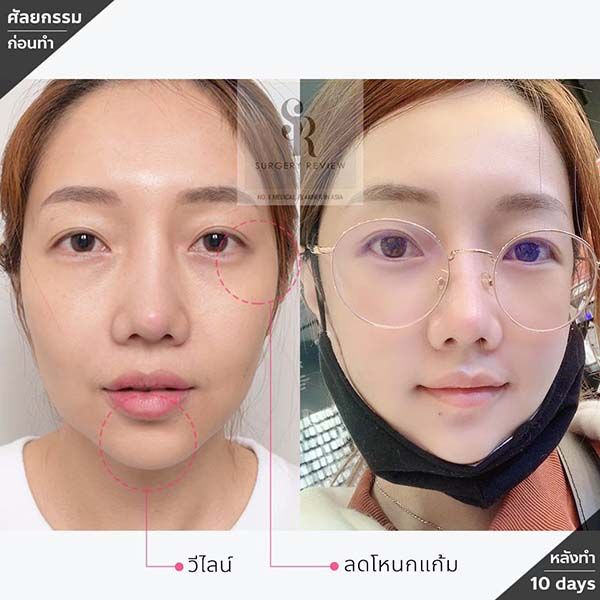 ศัลยกรรมปรับโหนกแก้มสูง แล้วหน้าดูอ่อนลง