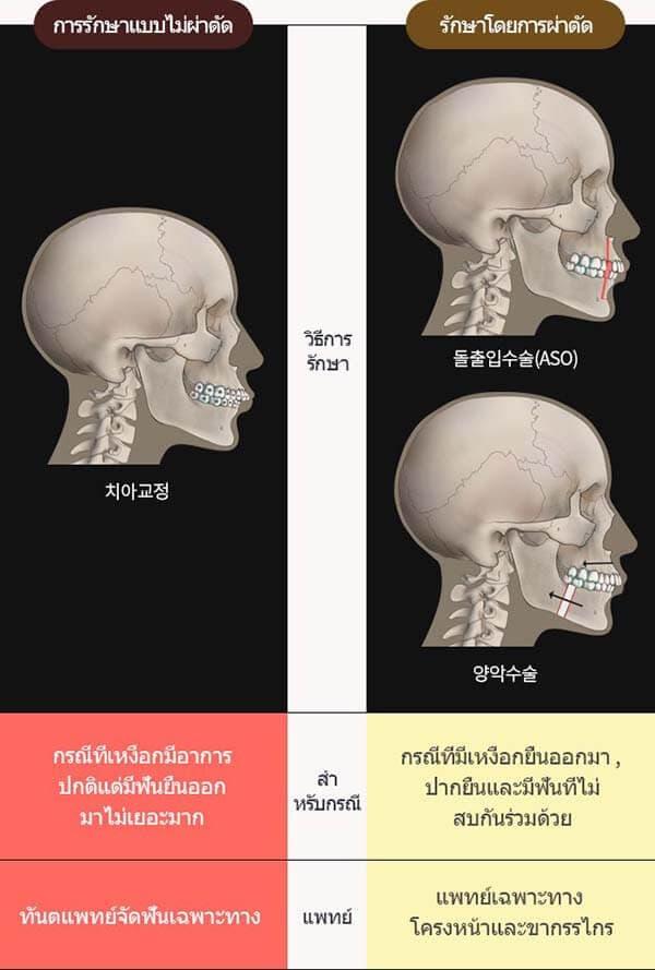 ปากยื่นและขากรรไกรต่างกันอย่างไร