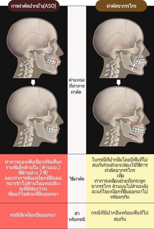 วิธีการผ่าตัดปากยื่น และผ่าตัดขากรรไกร