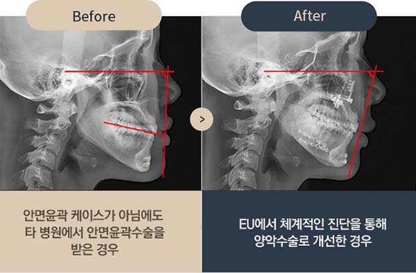 ct scan ก่อนและหลังผ่าตัดแก้ไขปากยื่น