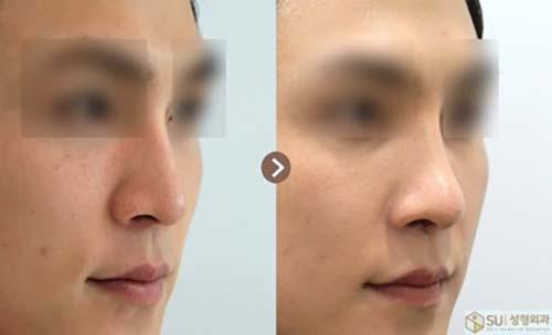 ตัวอย่างผลงานคุณหมอ Dr.Ahn Tae Joo เคสแก้ไขจมูกปลายตก