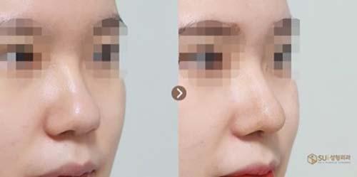 ตัวอย่างผลงานคุณหมอ Dr.Ahn Tae Joo เคสแก้ไขจมูกเนื้อหนา