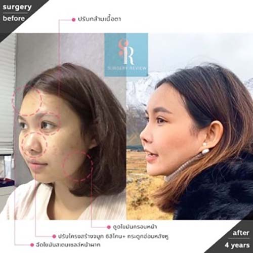 ตัวอย่างผลงานคุณหมอ Dr.Ahn Tae Joo เสริมจมูกครั้ง