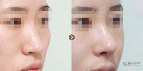 ตัวอย่างผลงานคุณหมอ Dr.Ahn Tae Joo แก้จมูกดูมีอายุ