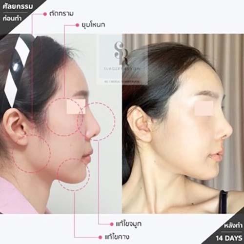 ตัวอย่างผลงานคุณหมอ Dr.Ahn Tae Joo แก้จมูกปลายจมูกสั้น