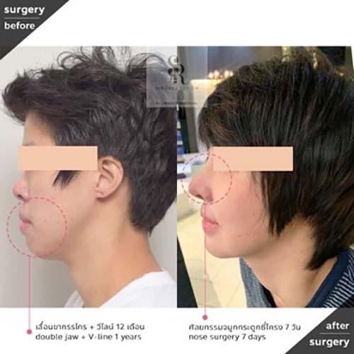ตัวอย่างผลงานคุณหมอ Dr.Chang Guen Uck แก้จมูกสั้น