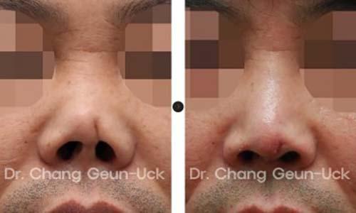ตัวอย่างผลงานคุณหมอ Dr.Chang Guen Uck แก้ปลายจมูกมีแผลเป็น