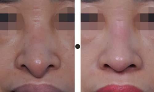 ตัวอย่างผลงานคุณหมอ Dr.Chang Guen Uck แก้ปลายจมูกยาวคล้ายปากนก