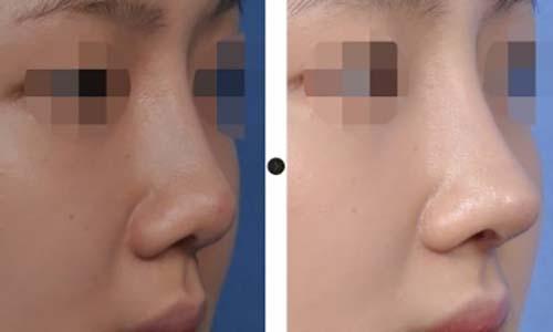 ตัวอย่างผลงานคุณหมอ Dr.Chang Guen Uck 1