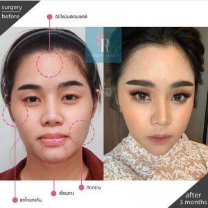 รีวิวศัลยกรรมเกาหลี โครงหน้าเด็กลดอายุ