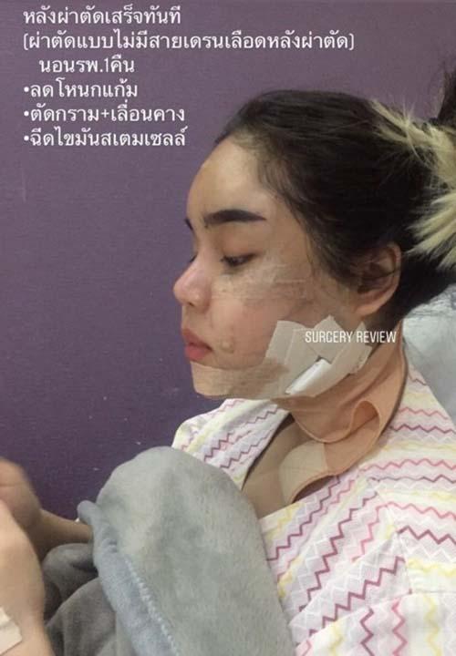 วันที่ 2 หลังผ่าตัด gyalumhan