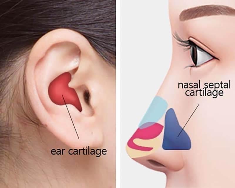เสริมจมูกด้วยเนื้อเยื่อกระดูกอ่อนหลังหู
