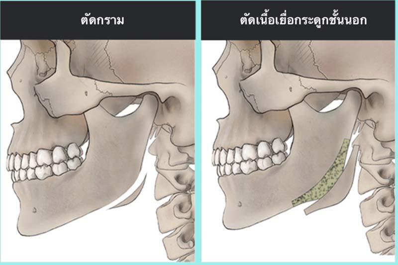 2 ขั้นตอนการผ่าตัดกราม